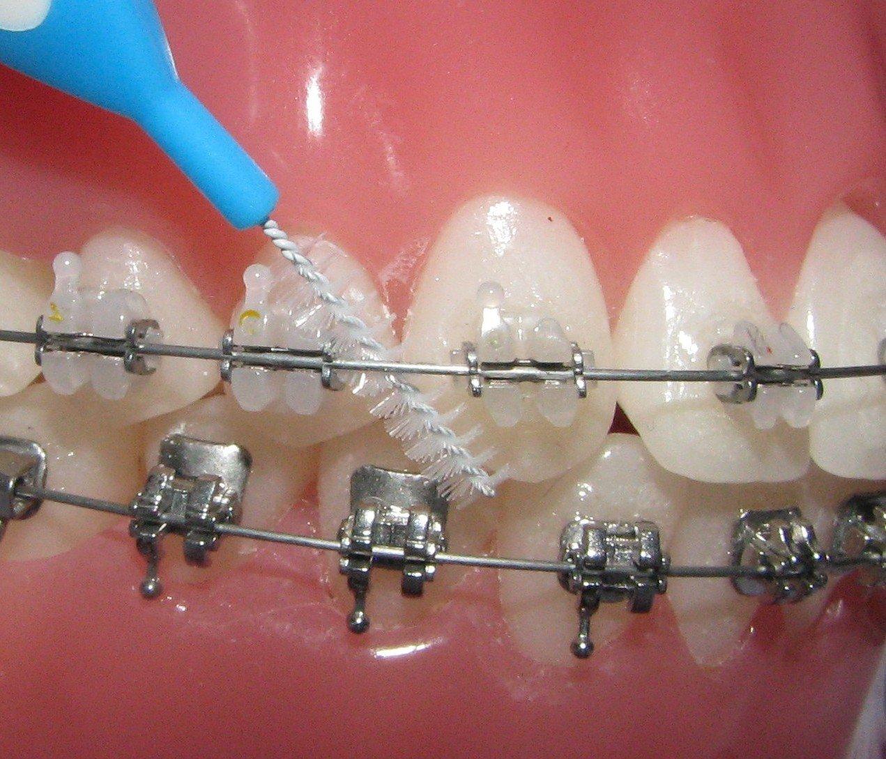 Щоденний догляд за зубами – це невід ємна частина ортодонтичного лікування  та запорука впевненості у собі. Яка має бути щітка для брекетів  0b19aa769aaf6